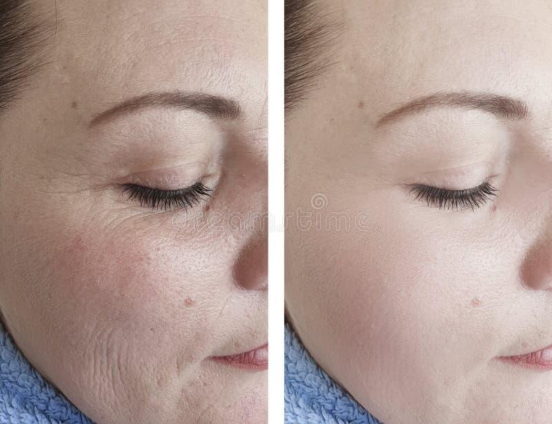 La mujer arruga la piel antes y después de tratamientos maduros de la cosmetología del tratamiento de la regeneración de los r fotos de archivo