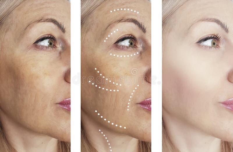 La mujer arruga retiro antes y después de tratamientos de la cosmetología del collage fotografía de archivo libre de regalías