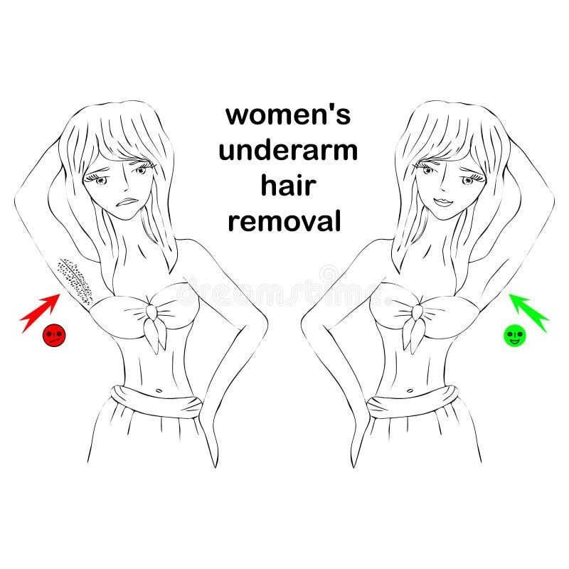 La mujer de la belleza de la historieta hace el epilation antes y después Concepto de retiro del pelo de la axila del ` s de las  ilustración del vector