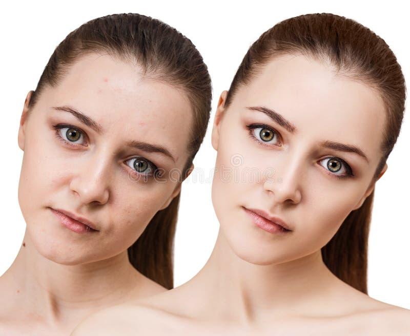 La mujer joven antes y después de retoca imagen de archivo libre de regalías