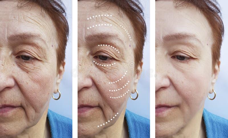 La mujer mayor arruga la corrección antes y después de tratamientos imagenes de archivo