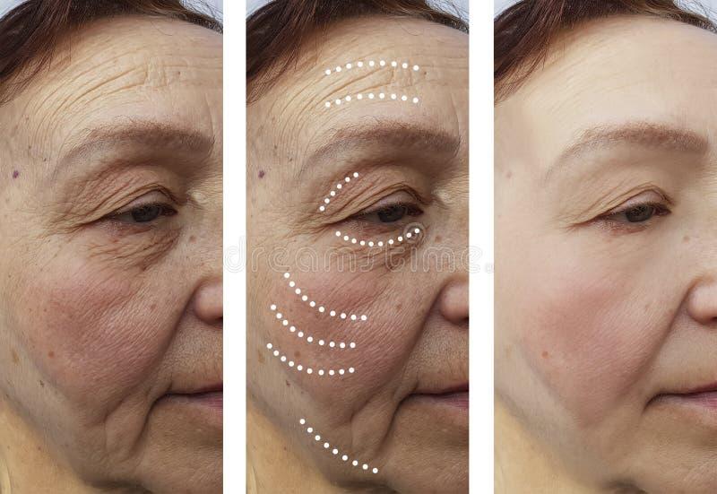 La mujer mayor arruga diferencia de la corrección antes y después de tratamientos fotos de archivo libres de regalías