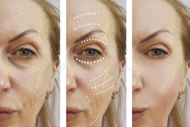 La mujer mayor arruga diferencia de la diferencia de la cosmetología de la corrección antes y después de la elevación de los trat imagen de archivo