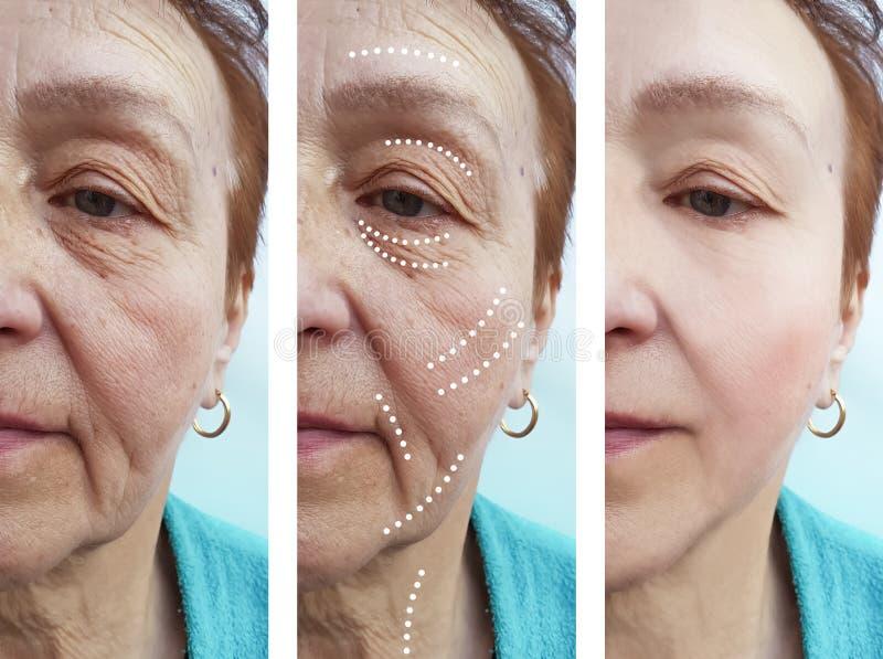 La mujer mayor arruga diferencia del retiro del cirujano de la corrección antes y después de la elevación de los tratamientos fotografía de archivo libre de regalías