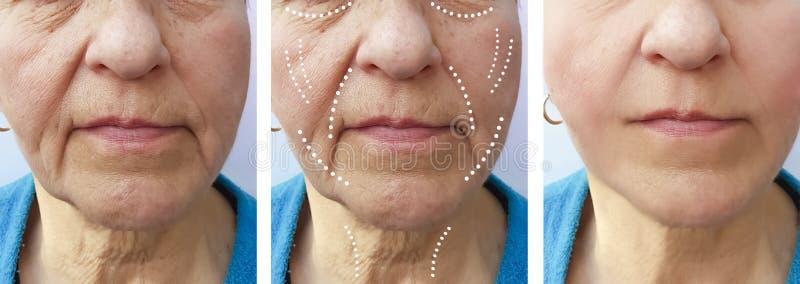 La mujer mayor arruga diferencia del retiro del rejuvenecimiento del cirujano de la corrección antes y después de la elevación de imágenes de archivo libres de regalías