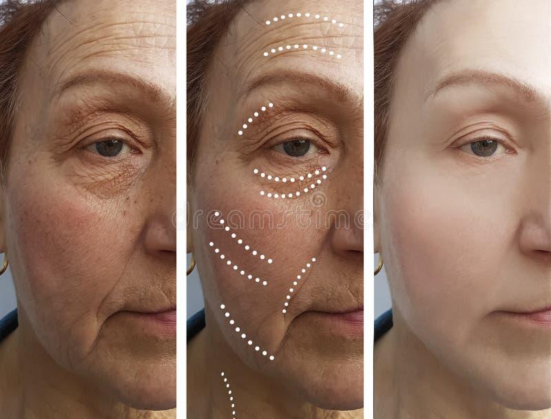 La mujer mayor arruga diferencia del retiro del rejuvenecimiento del cirujano de la corrección antes y después de tratamientos imagen de archivo