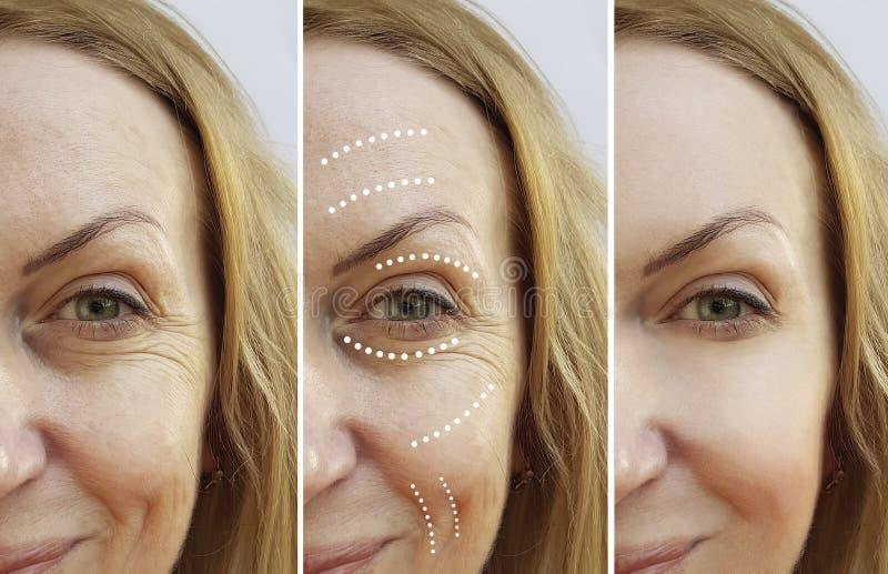 La mujer mayor arruga diferencia plástica de la diferencia de la cosmetología de la corrección antes y después de la elevación de imagen de archivo