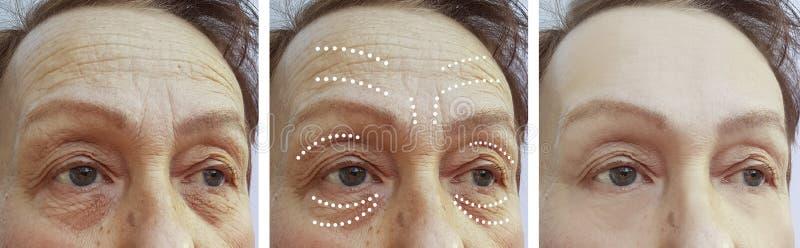 La mujer mayor arruga diferencia plástica de la diferencia del resultado de la corrección antes y después de la elevación de los  fotos de archivo libres de regalías