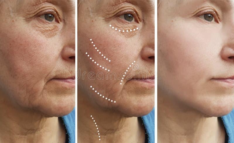 La mujer mayor arruga retiro antes y después de la diferencia de la elevación foto de archivo
