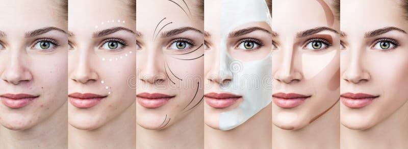 La mujer paso a paso mejora su enfermedad de la piel fotos de archivo