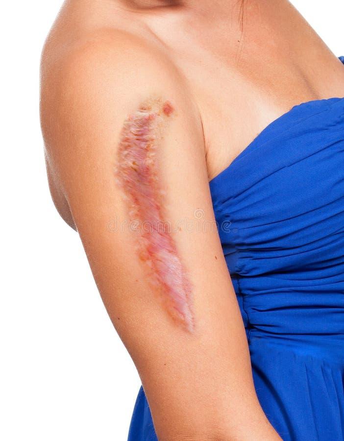 La mujer tiene una cicatriz grande en su brazo imagen de archivo