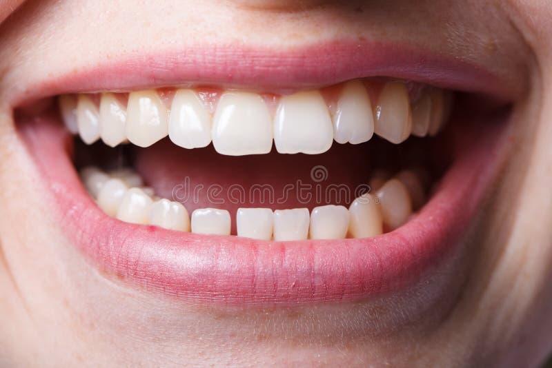 La odontología, dental, la boca y los dientes se cierran encima de la sonrisa foto de archivo libre de regalías