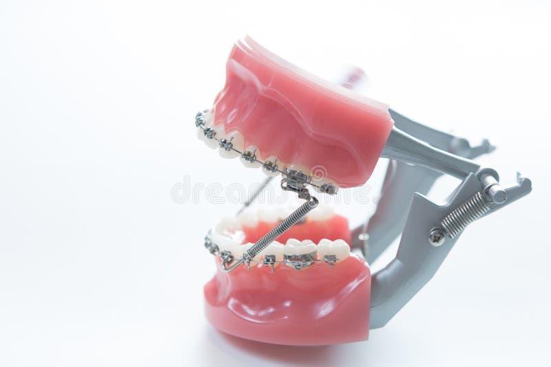 La parenthèse dentaire de mâchoire inférieure attache le modèle sur le blanc images stock