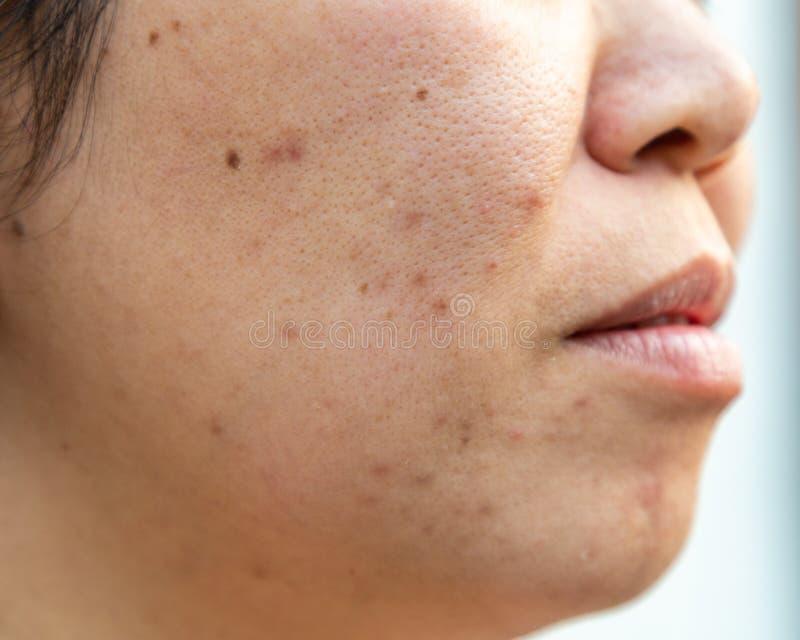 La peau faciale de problèmes est acné et défauts images libres de droits
