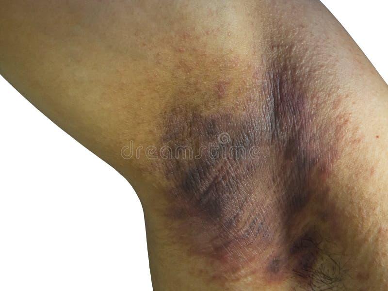 La pelle colpita, tricofitosi sotto le ascelle impetuosa di infezioni dell'ascella, follicolite batterica, suppurativa di hidrade fotografie stock