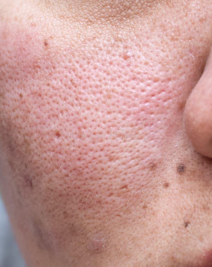 La pelle problematica della donna, cicatrici dell'acne, pelle e poro oleoso, punti scuri e comedone e whitehead ed eruzione sul f fotografia stock libera da diritti