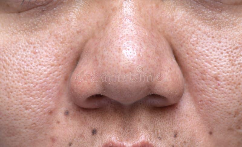 La pelle problematica della donna, cicatrici dell'acne, pelle e poro oleoso, punti scuri e comedone e whitehead sul fronte immagine stock
