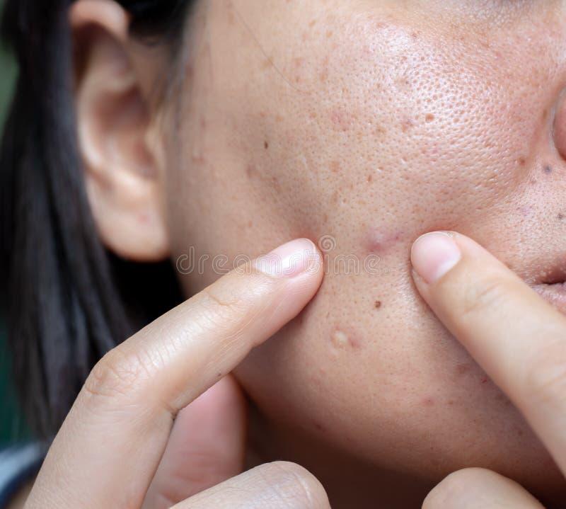 La pelle problematica della donna, cicatrici dell'acne, pelle e poro oleoso, punti scuri e comedone e whitehead sul fronte immagini stock libere da diritti