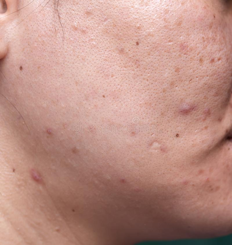 La pelle problematica della donna, cicatrici dell'acne, pelle e poro oleoso, punti scuri e comedone e whitehead sul fronte fotografia stock