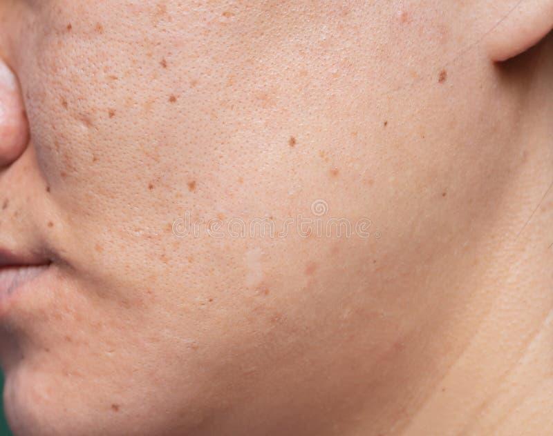 La pelle problematica della donna, cicatrici dell'acne, pelle e poro oleoso, punti scuri e comedone e whitehead sul fronte fotografia stock libera da diritti