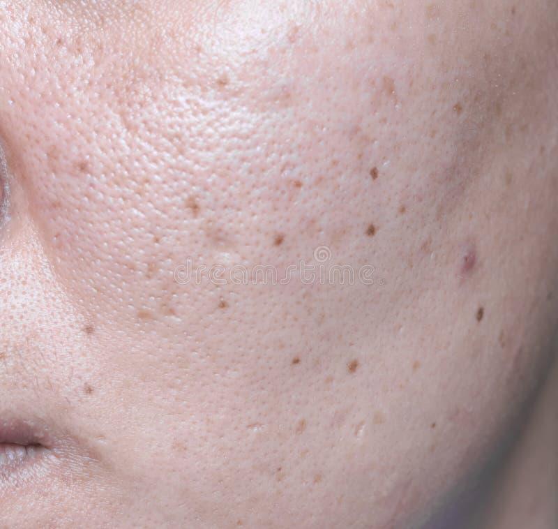 La pelle problematica della donna, cicatrici dell'acne, pelle oleosa e poro, scuri fotografia stock libera da diritti