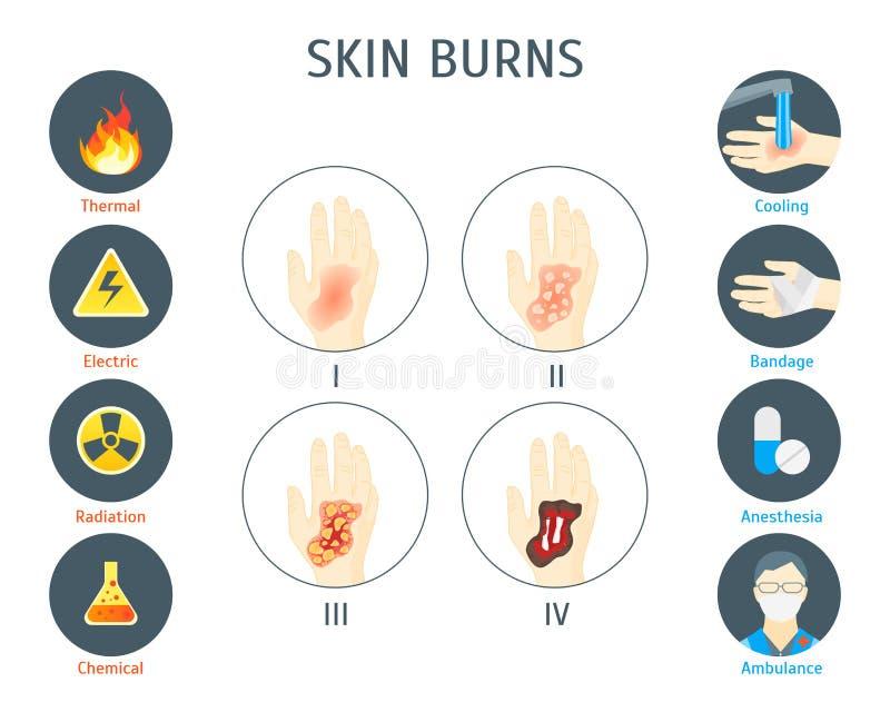 La pelle umana brucia il manifesto della carta di Infographic Vettore royalty illustrazione gratis