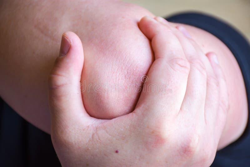 La persona o el paciente guarda para codear con la palma de la otra mano debido al dolor severo en la junta de codo, el trauma o  imagen de archivo