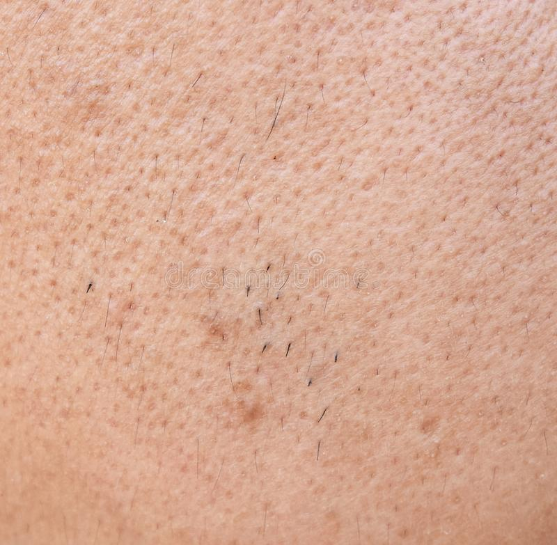 La piel asiática superficial de la cara del hombre después de no consigue un guiño del sueño y no toma cuidado durante mucho tiem imagenes de archivo