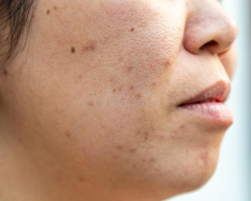 La piel facial de los problemas es acné y defectos imágenes de archivo libres de regalías