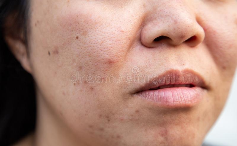 La piel facial de los problemas es acn? y defectos imagenes de archivo