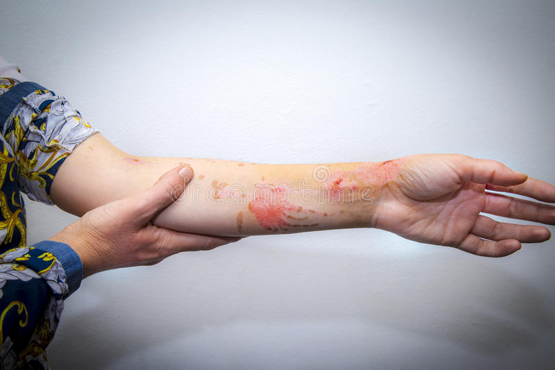 La piel quema en el brazo humano imagenes de archivo