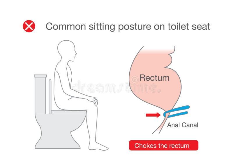 La posizione comune mentre si siede sulla toilette fa il disagio del retto illustrazione vettoriale
