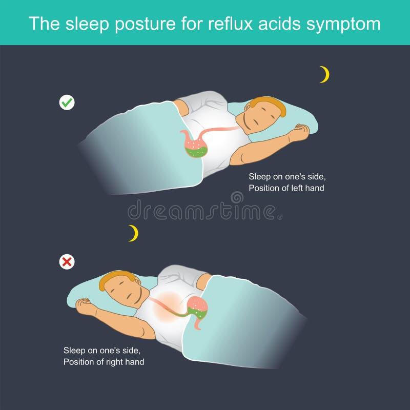 La posizione di sonno per il sintomo degli acidi di riflusso royalty illustrazione gratis