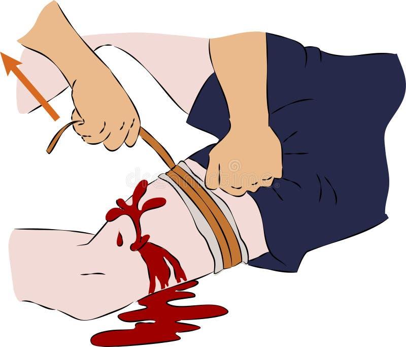 La première aide - arrêtez le sang sur la jambe avec une bande élastique illustration libre de droits