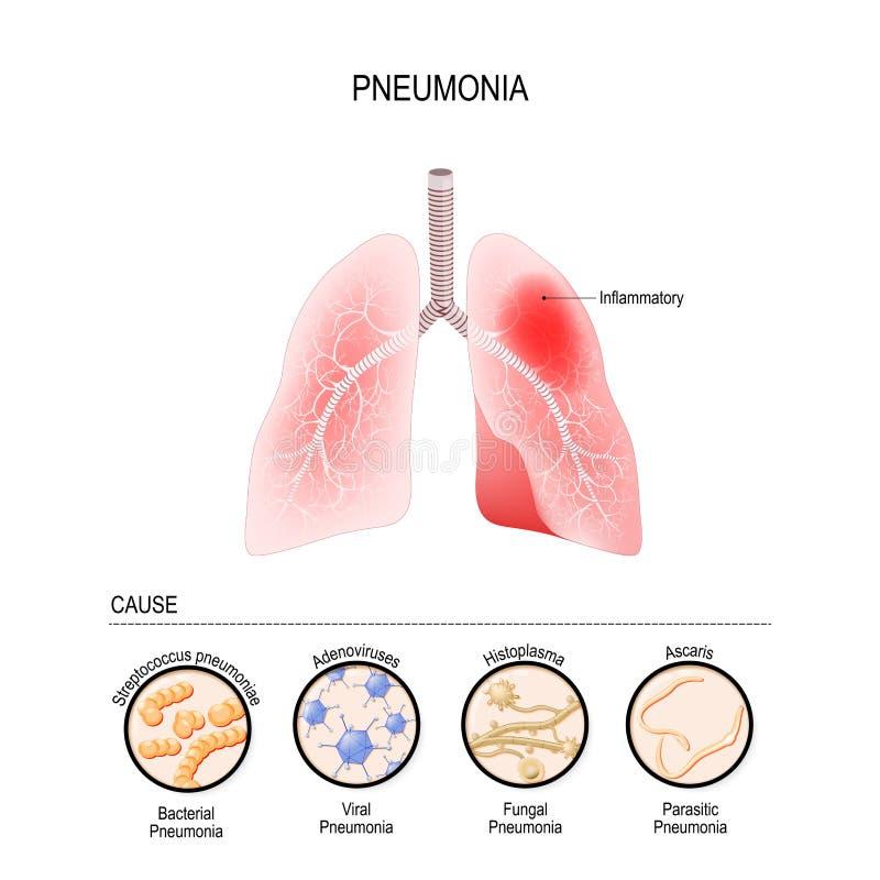 La pulmonía es causada por la infección con los virus, las bacterias, los hongos y el microorganismo libre illustration