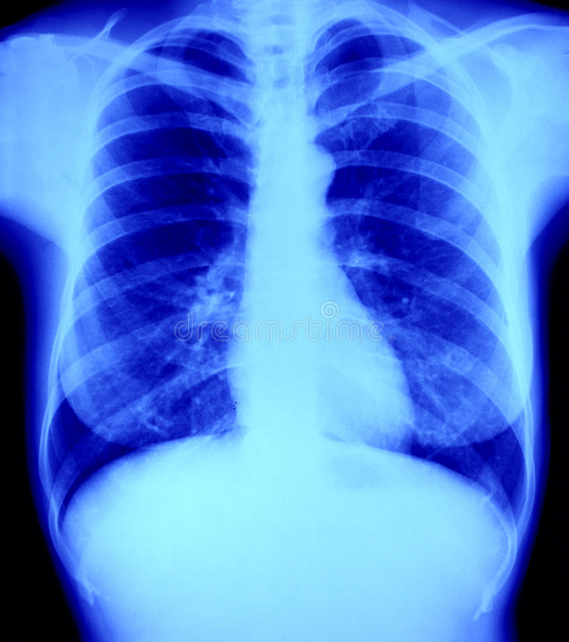 La radiografía normal de la radiografía del pecho, pulmón y oye
