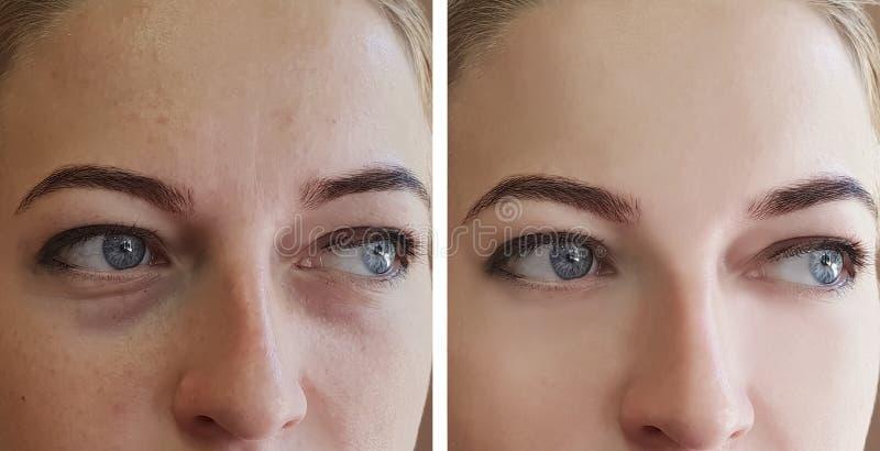 La ragazza corruga gli occhi prima e dopo le borse di rimozione dei trattamenti fotografia stock libera da diritti