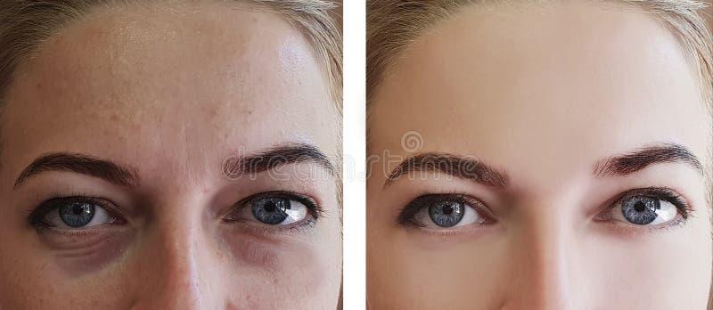 La ragazza corruga gli occhi prima e dopo rimozione dei trattamenti fotografia stock libera da diritti