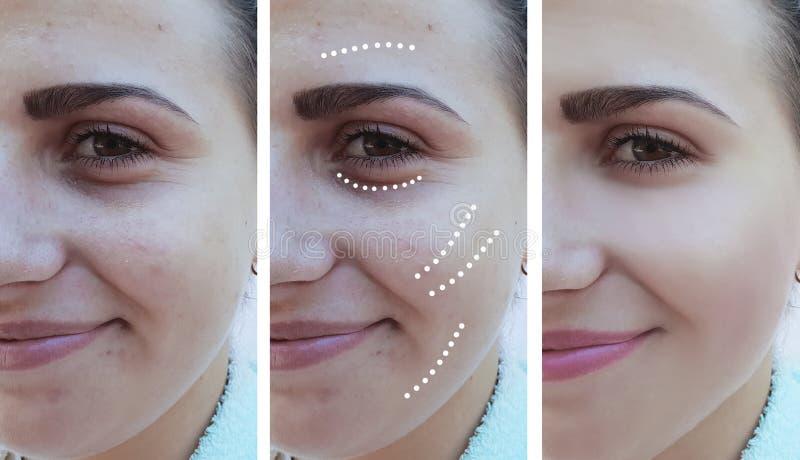 La ragazza corruga prima gli occhi dopo le procedure di sollevamento del trattamento di effetto di correzione fotografia stock