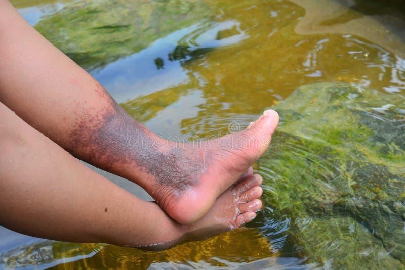 La source thermale naturelle soulage des problèmes profonds de thrombose de veine sur les jambes femelles images libres de droits