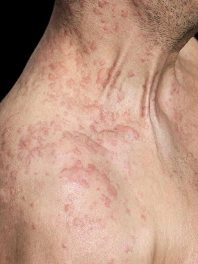 La spalla dell'uomo coperta di allergia della pelle fotografie stock libere da diritti