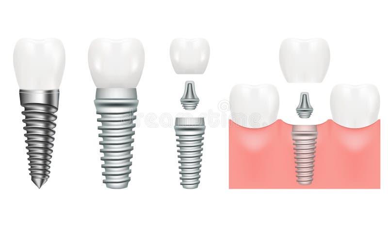 La structure réaliste d'implant dentaire avec toutes les pièces couronnent, butée, vis dentistry Implantation des dents humaines  illustration libre de droits