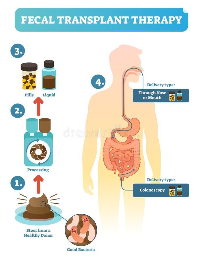 La terapia fecal del trasplante, pasos de procedimiento diagram, vector el ejemplo Microflora digestiva humana de renovación libre illustration