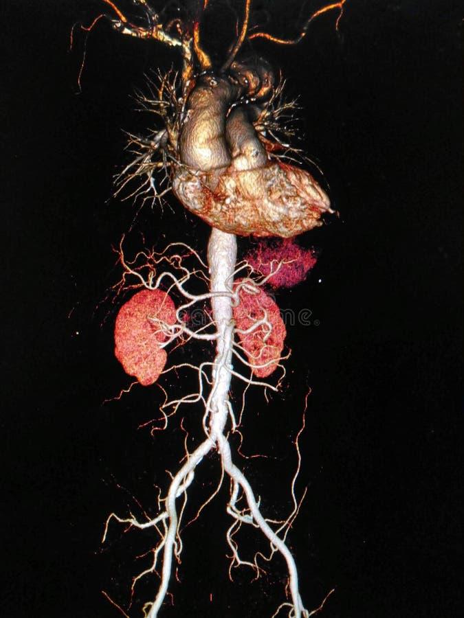La tomografía computada angiographphy3D de CTA toma la foto de la radiografía de la película de la aorta entera, AP VI anteropost fotos de archivo libres de regalías
