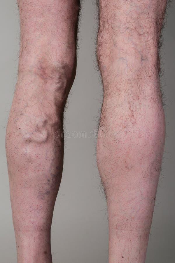 La vena varicosa stretta sulla a equipaggia le gambe fotografia stock
