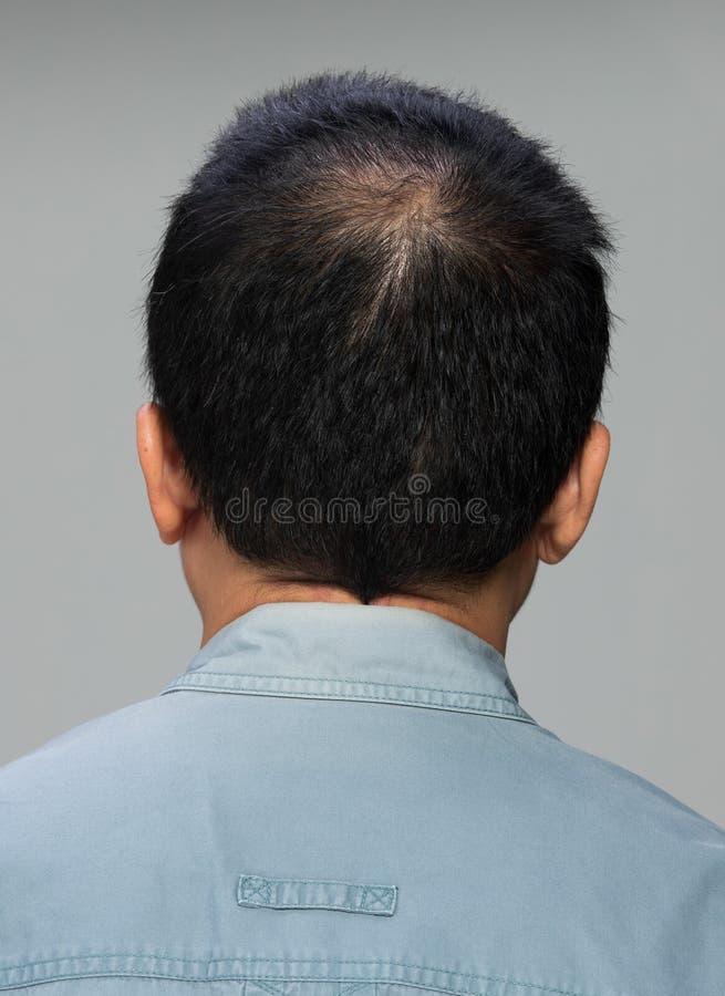 La vista trasera de la pieza masculina de la cabeza del pelo se queda calvo fotografía de archivo libre de regalías
