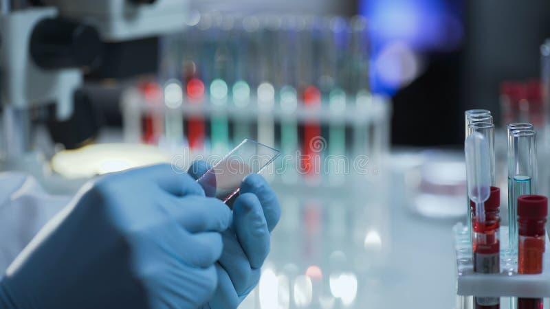 Lab naukowa narządzania mikroskopu obruszenie z próbką krwi dla egzaminu obrazy stock