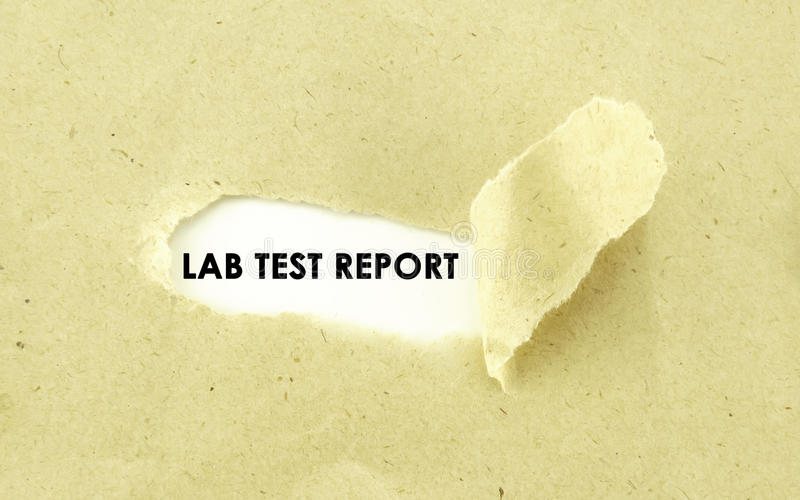 LAB TEST REPORT. Text LAB TEST REPORT appearing behind torn light brown envelope royalty free stock photos