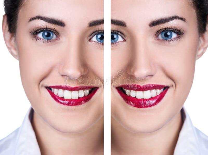Labios antes y después de inyecciones del llenador fotos de archivo libres de regalías