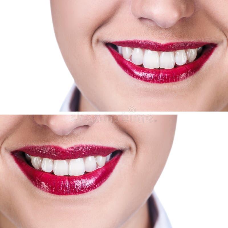 Labios antes y después de inyecciones del llenador fotografía de archivo libre de regalías